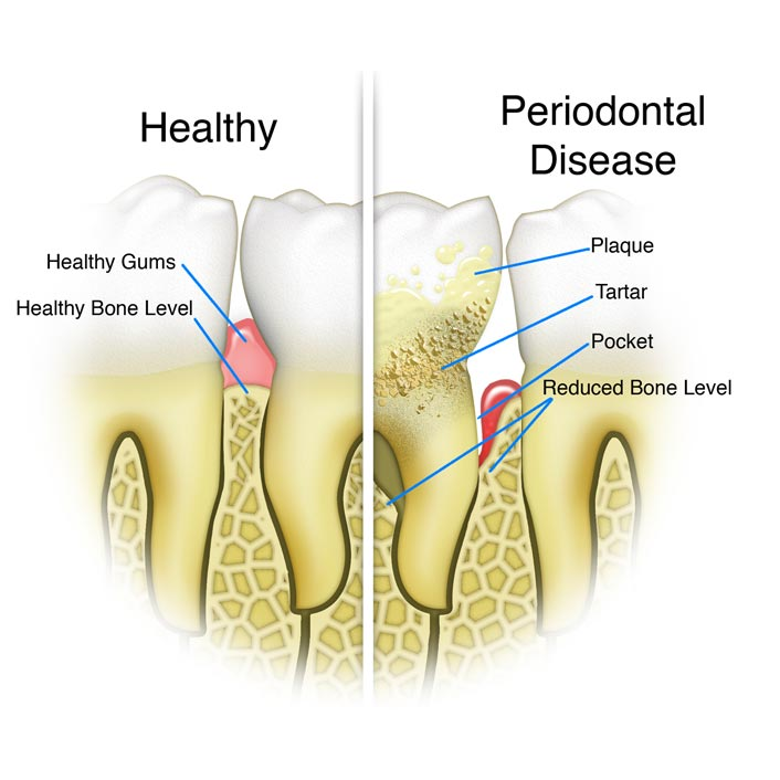 Gum (Periodontal) Treatments